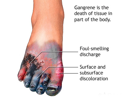 Homeopathy is the death of the patient suffering from gangrene